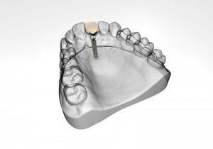 Dental Implant by Dr Morfiri