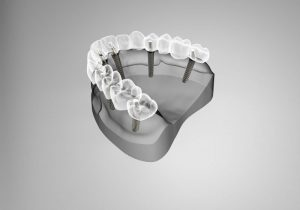 Dental Implants, Implatology