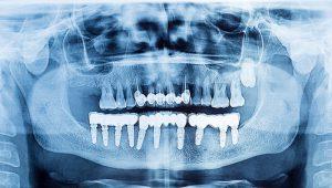 Maxillofacial Surgery And Implantology