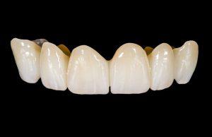 Full Ceramic Crowns By Dr Cristina Morfiri