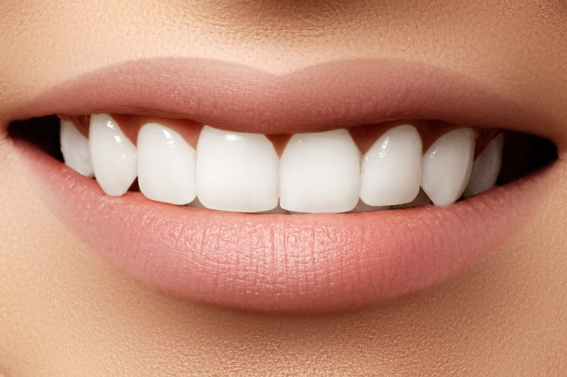 Ultra Thin Veneers