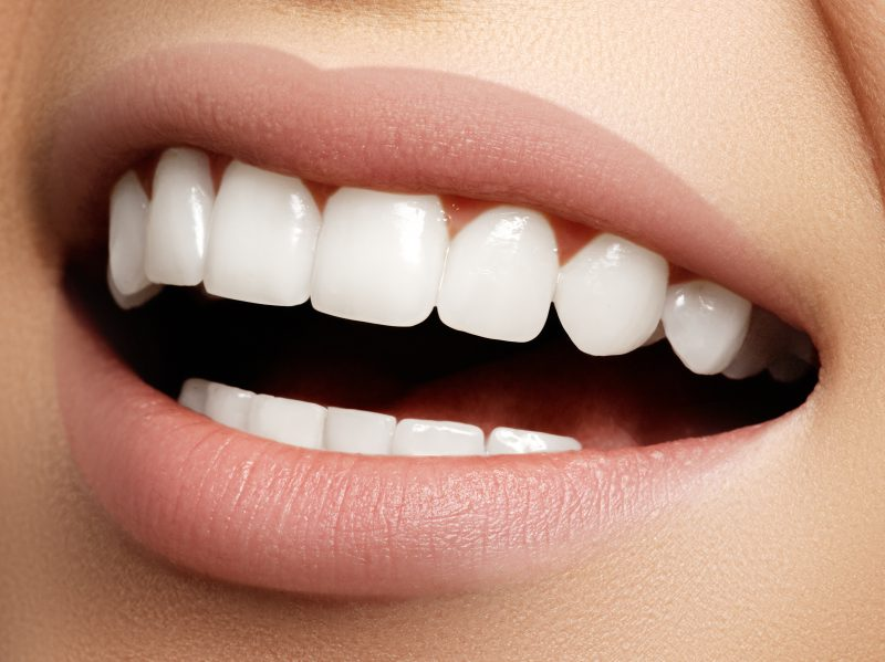 Teeth Whitening In Glyfada