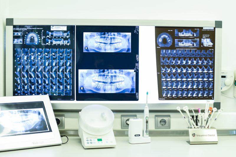 Dental X-Ray & Diagnostics